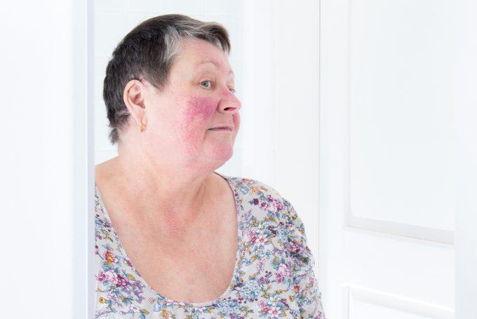 Rosacea, facial skin disorder, portrait of unhappy elderly woman