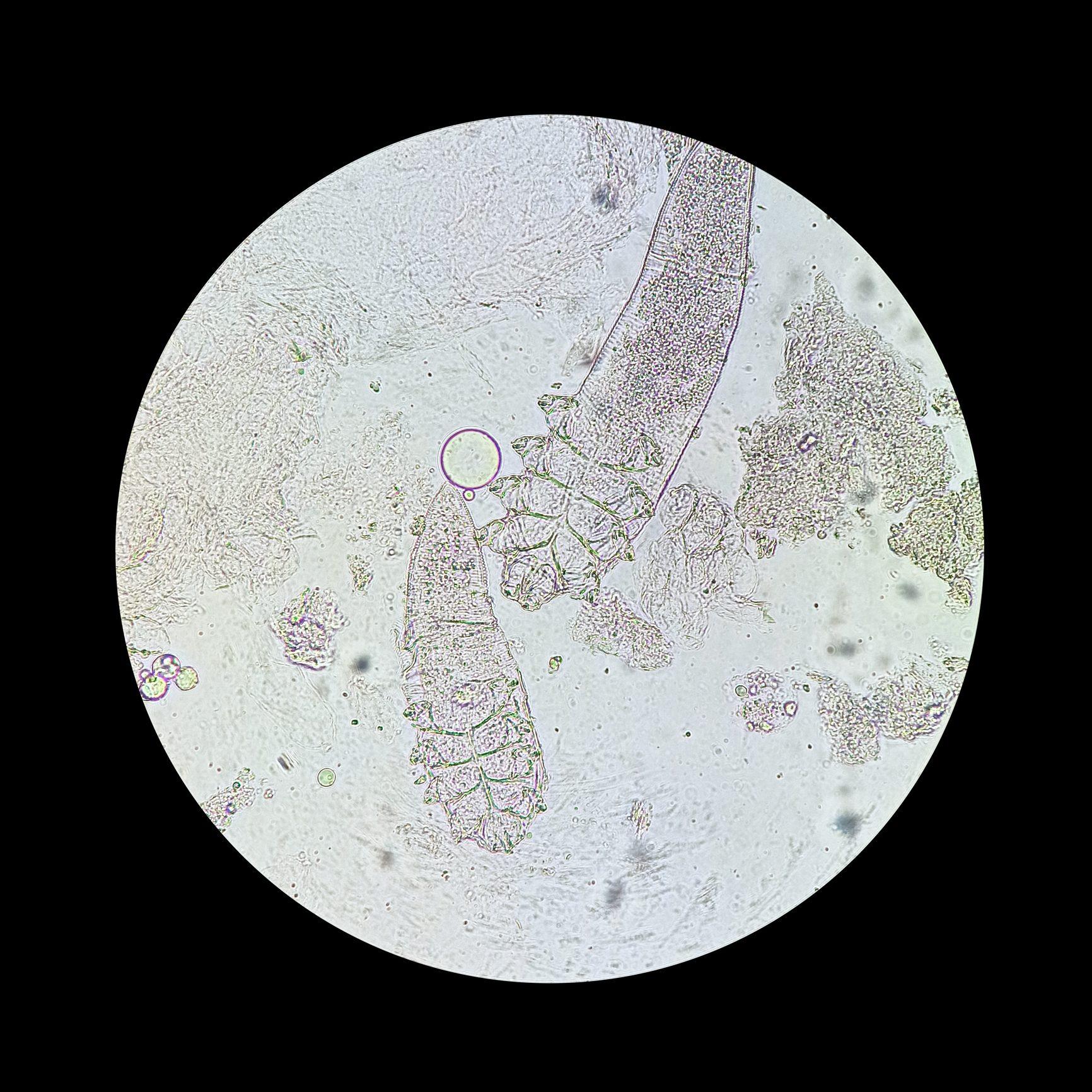 demodex mites under microscope