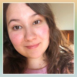 Trish Valencia Rosacea Selfie