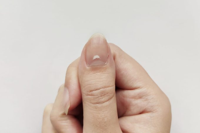 White Spots on Nail isolated on white background. Disease leuconychia