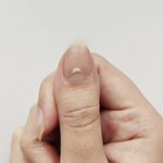 Here's What It Means if You Have White Spots on Your Nails