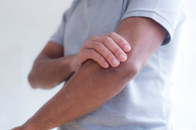 Man touching his elbow in pain