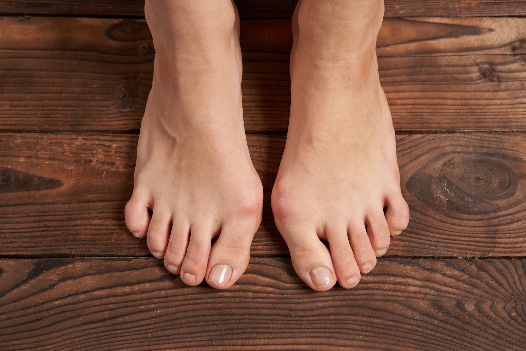 Hllux Valgus on female legs close up on wooden background