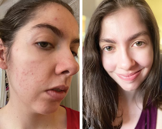 Emily Aaccutane Before And After01