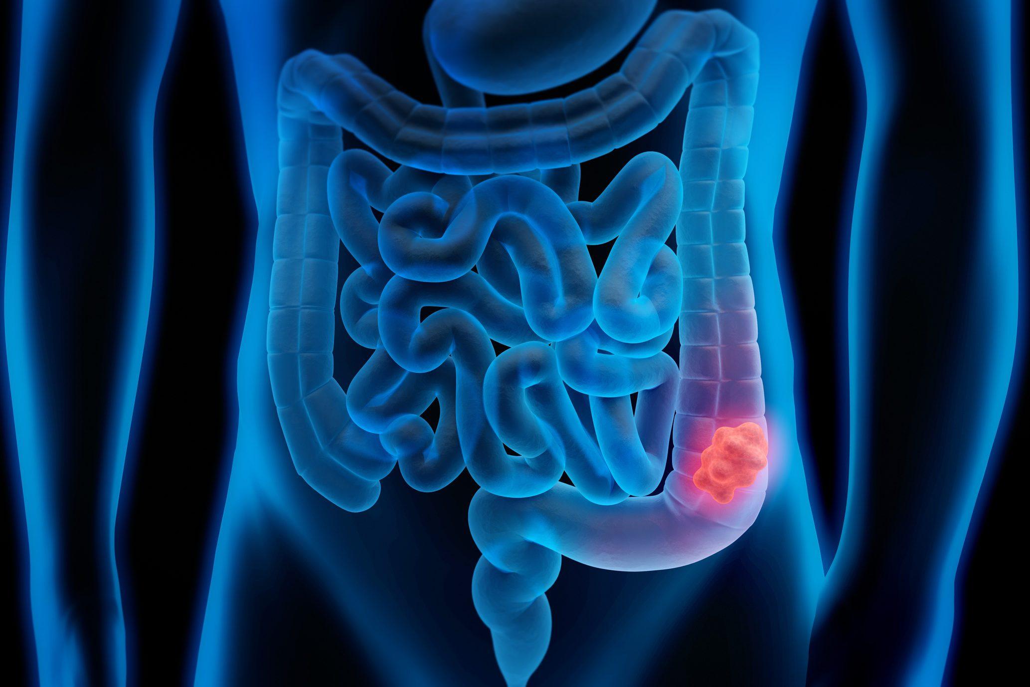 3d illustration of colon cancer - colon tumor