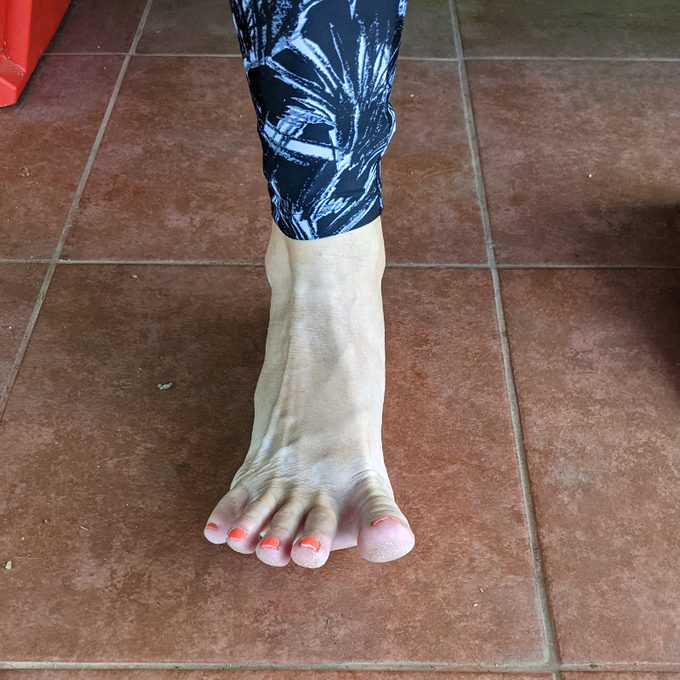 Toe Spread Outs Bunion Exercise