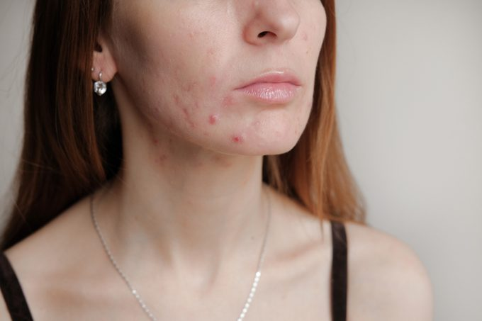 Woman with problem skin. Teen acne on young skin. Tools for removing acne.