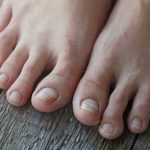 6 Causes of Yellow Toenails and Treatments That Help