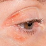 8 Tips for Dealing With Psoriasis on Your Eyelids
