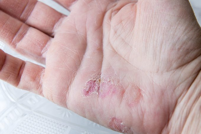 extreme sore dry cracked and peeling skin in the hand.
