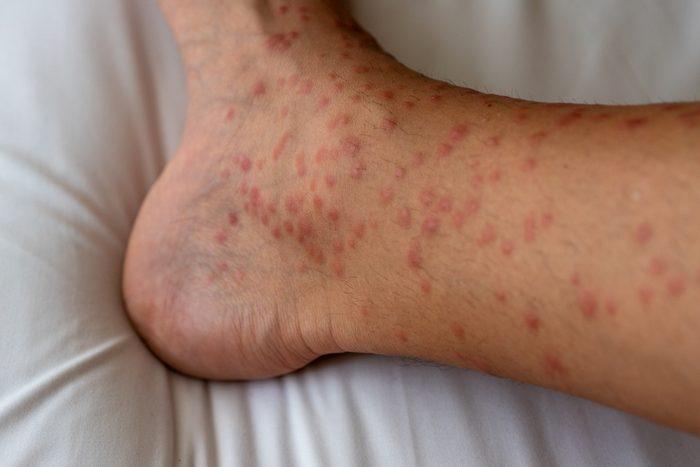 mosquitos bite on the leg close up