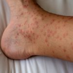 Have a Severe Reaction to a Bug Bite? It Could Be Papular Urticaria