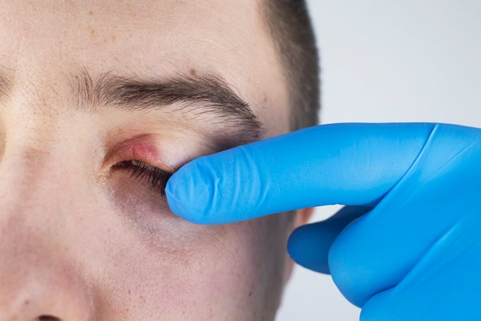 A doctor examines a patient who has blepharitis. Treatment of inflammation and redness of the eyelid. Infection of the skin around the eyes. The concept of providing quality medical care