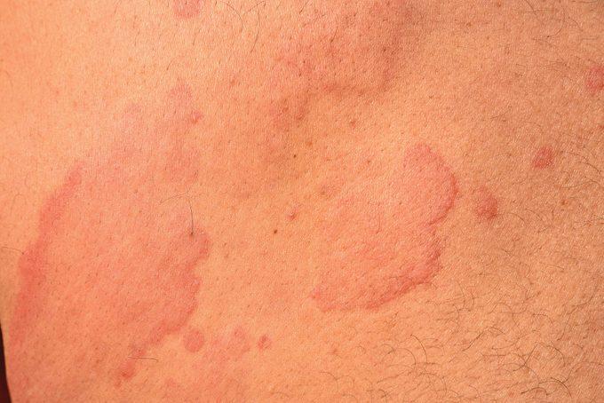 Hives - Urticaria, Skin Disease