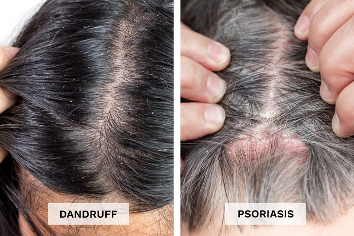 Dandruff Vs Psoriasis Pictures Side By Side