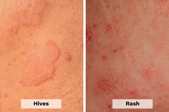 Hives Vs Rash