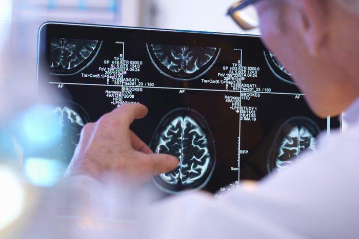 Radiologist assessing CT brain scan