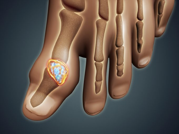 3d medical illustration of gout in big toe